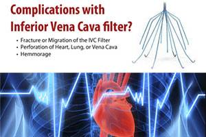 ivc_filter